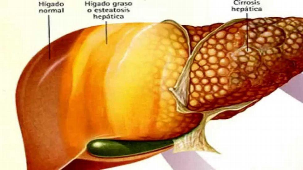 Resultado de imagen para enfermedad higado graso