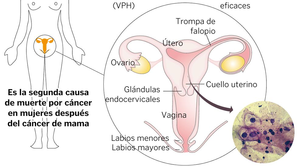 Povisa opera tumores de útero sin eliminar la capacidad de gestación