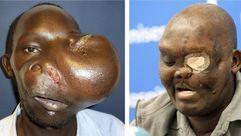 El antes y después de la extracción de un tumor gigante