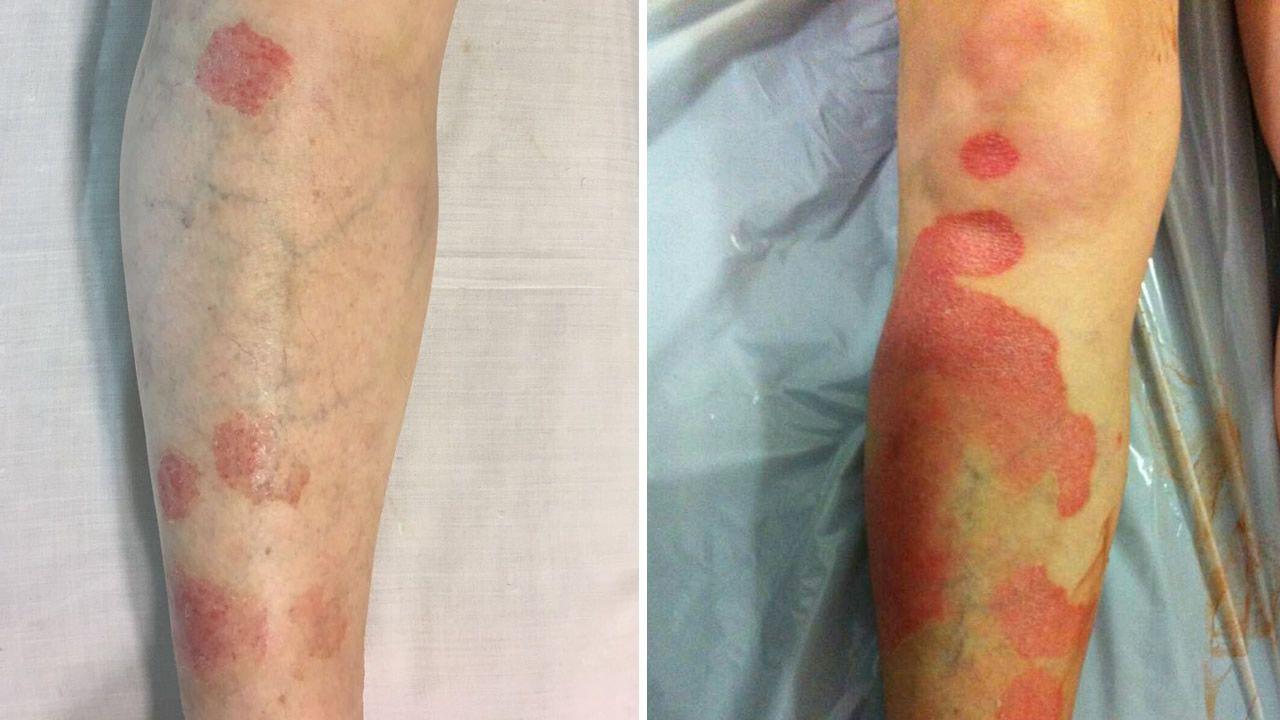 .La lesión después del tratamiento (a la izquierda) y antes (a la derecha)