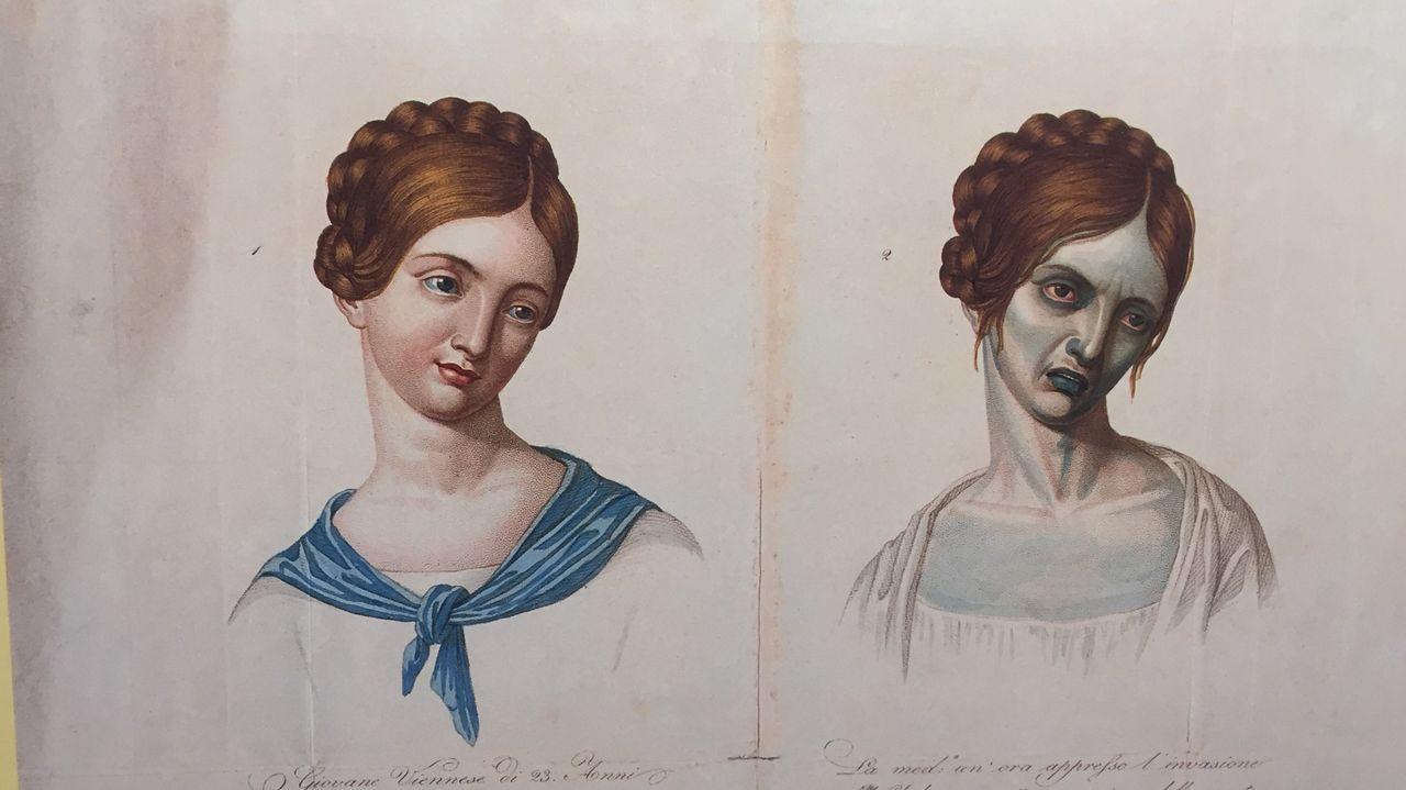 La exposición incluye ilustraciones como esta en la que se muestra cómo afectaba el cólera a los enfermos