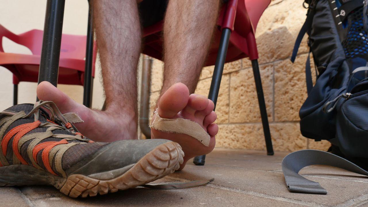 Los pies de Matt Wilson, californiano, en pleno proceso de curas