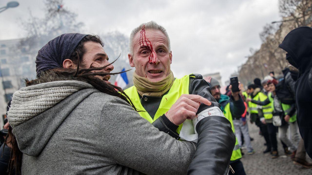 Uno de los heridos durante los enfrentamientos entre manifestantes y fuerzas del orden en París, en los que otro manifestante perdió una mano