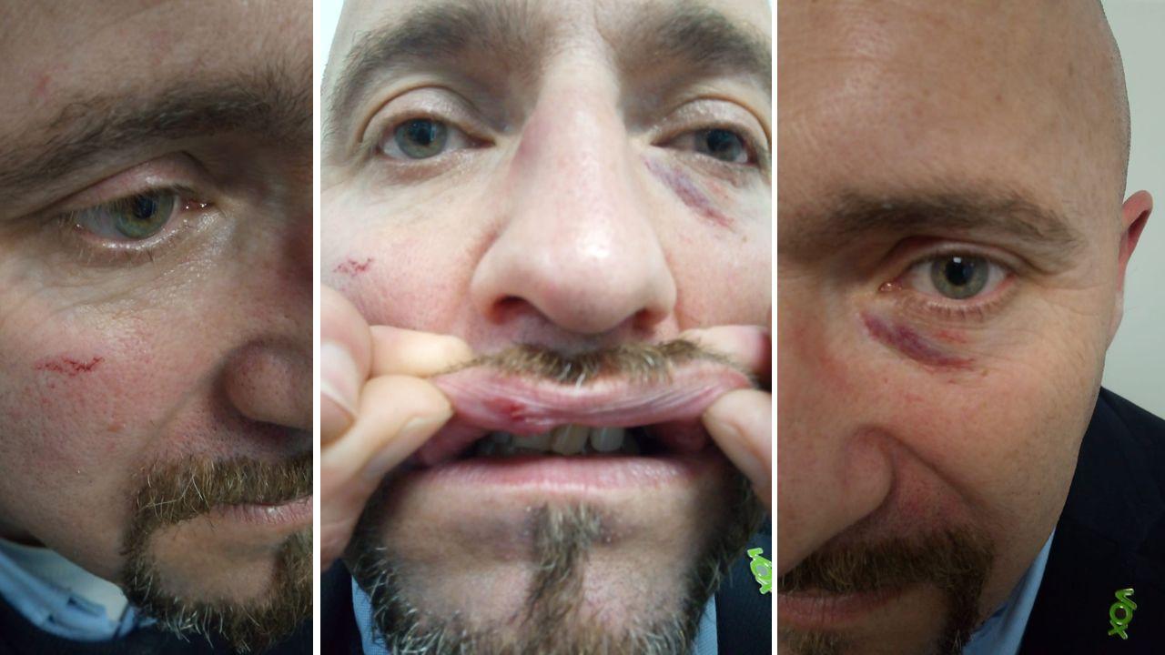 Imágenes de las heridas de Juan Manuel Rosales, coordinador de Vox en Pontevedra