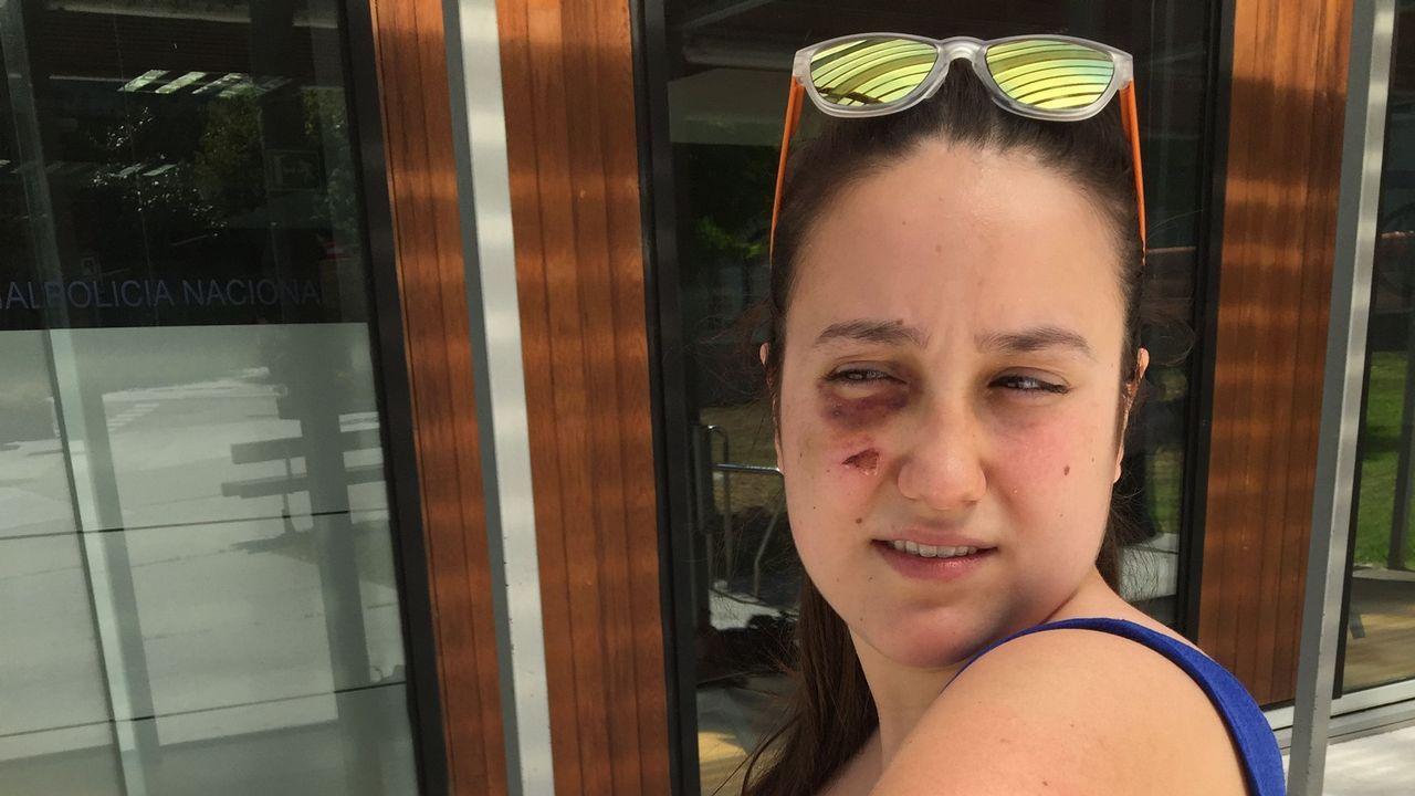 Miles de personas se movilizan para encontrar el iPad de un niño autista de Vigo.Nuria Gil sufrió magulladuras en todo su cuerpo en el accidente