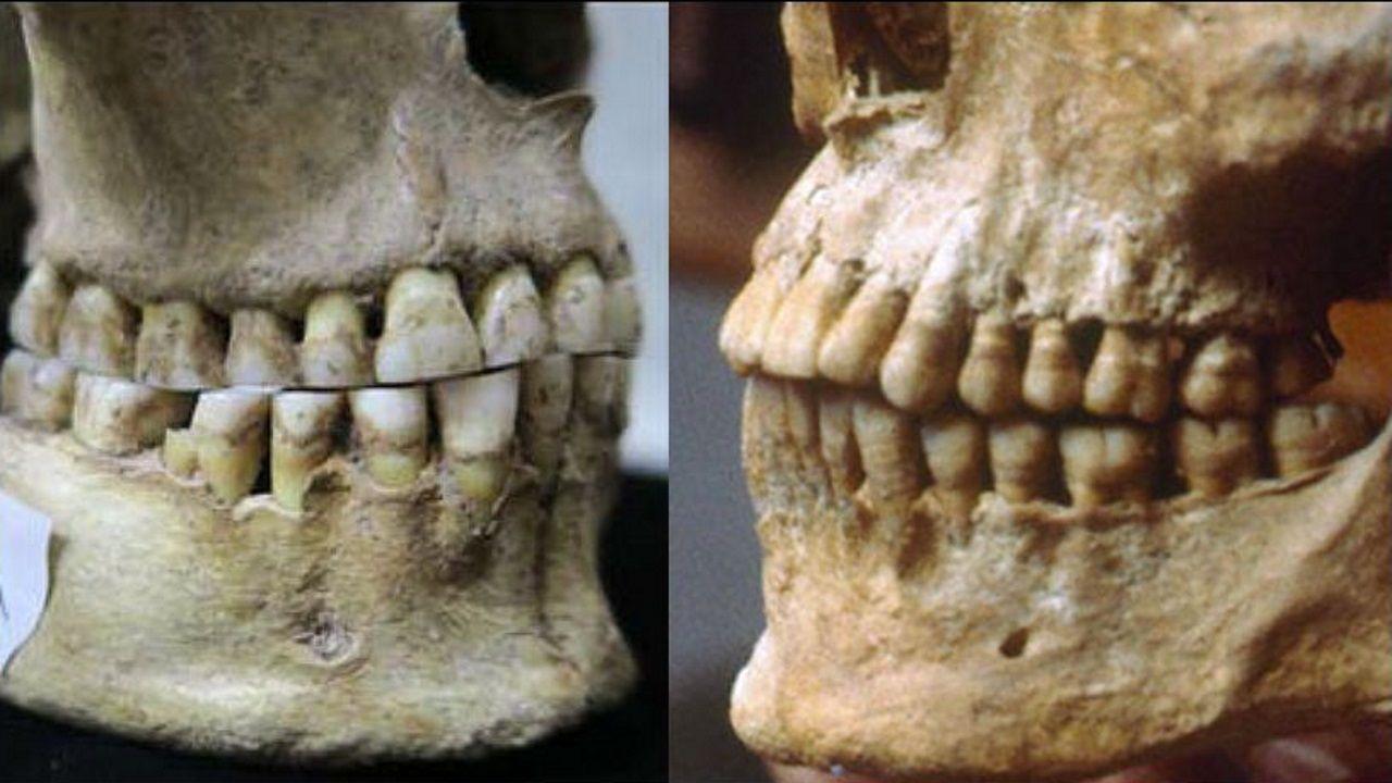 Observación asturiana en un paraíso africano.El cráneo de una antigua cazadora-recolectora de Rumania (izquierda) carece de una sobremordida observada en el cráneo de un griego de hace 2.500 años