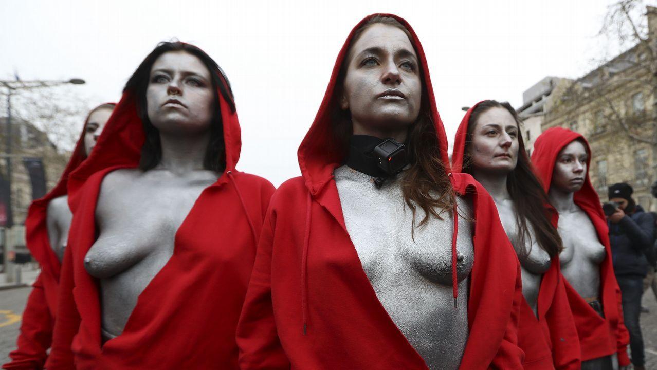 El HULA estrena técnica para eliminar con ondas el calcio de las arterias.Mujeres vestidas como Marianne, el símbolo de la libertad en la república francesa