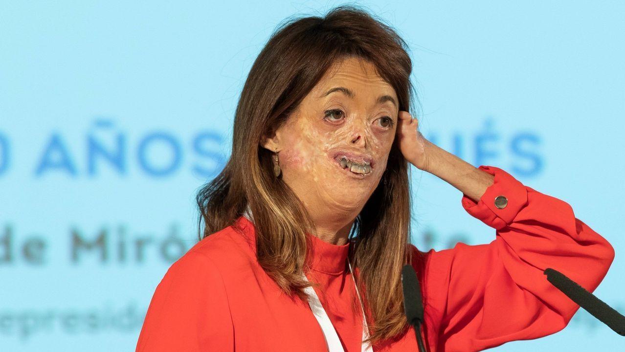Una fallecida en Valencia por intoxicación con setas en un restaurante de lujo.La vicepresidenta de la Federación Española de Enfermedades Raras, Fidela Mirón, afectada de porfiria eritropoyética congénita