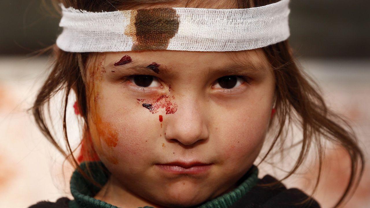 Una niña afgana, herida en el atentado del día anterior, posa para los fotógrafos en el lugar del suceso en Kabul (Afganistán) hoy, 15 de enero de 2019. Los talibanes reclamaron hoy la autoría de un atentado con coche bomba perpetrado la noche del lunes que causó al menos cuatro muertos y otros 113 heridos en una zona residencial frecuentada por extranjeros, en el este de Kabul