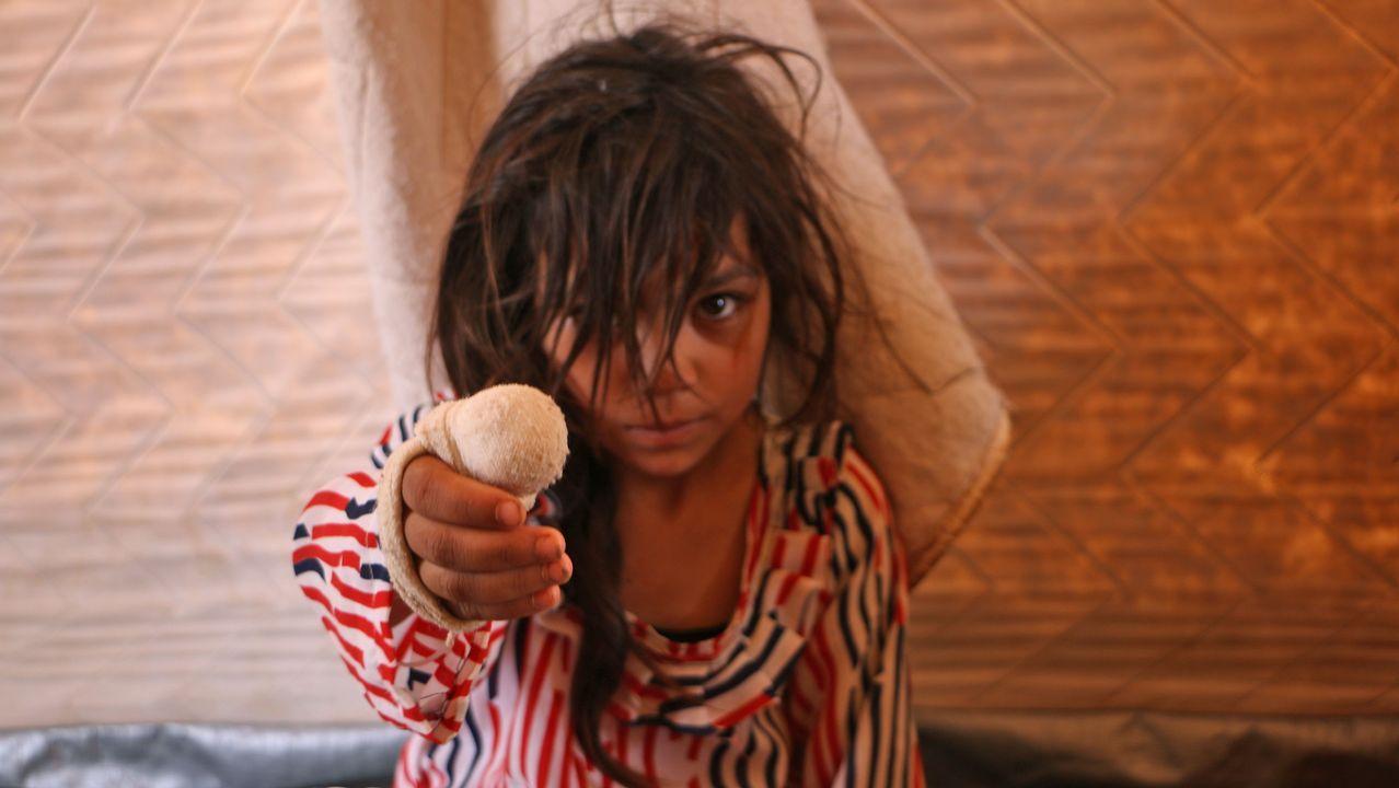 .Una niña siria herida se recupera en un campo de refugiados de Kafr Lusin, en Siria