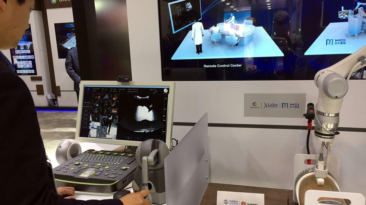 La telemedicina vivirá una revolución con el 5G. En la imagen una ecografia remota con conexión en tiempo real