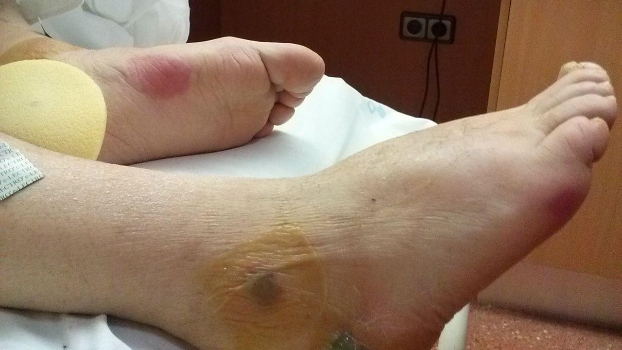 Las heridas que presentaban los pies de Emilio Álvarez García, más conocido como «Milio, el de Guita», el día de su ingreso hospitalario