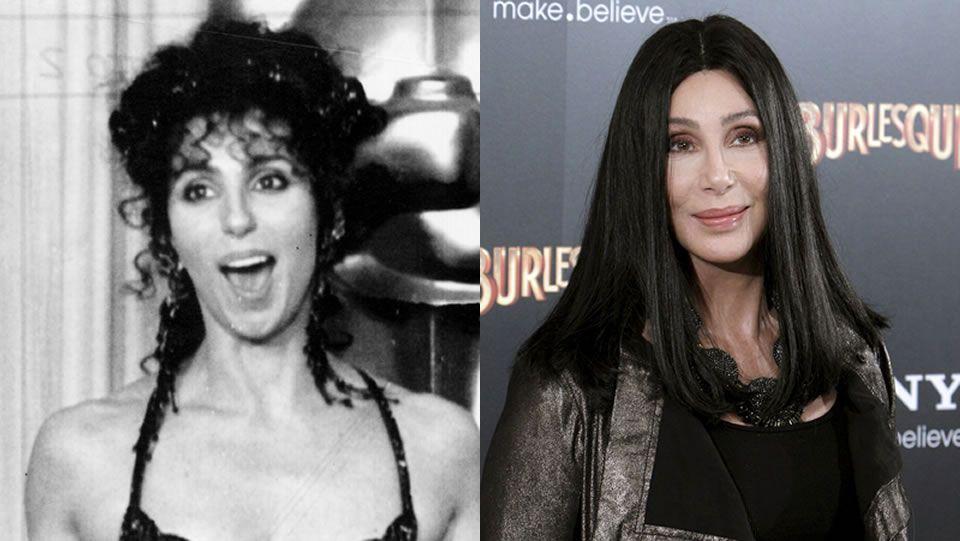 Cher.Cher, una de las primeras famosas adictas al bisturí