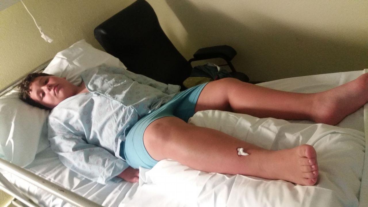 Jonathan, alumno del Manuel Murguía de Feáns, mordido por una víbora