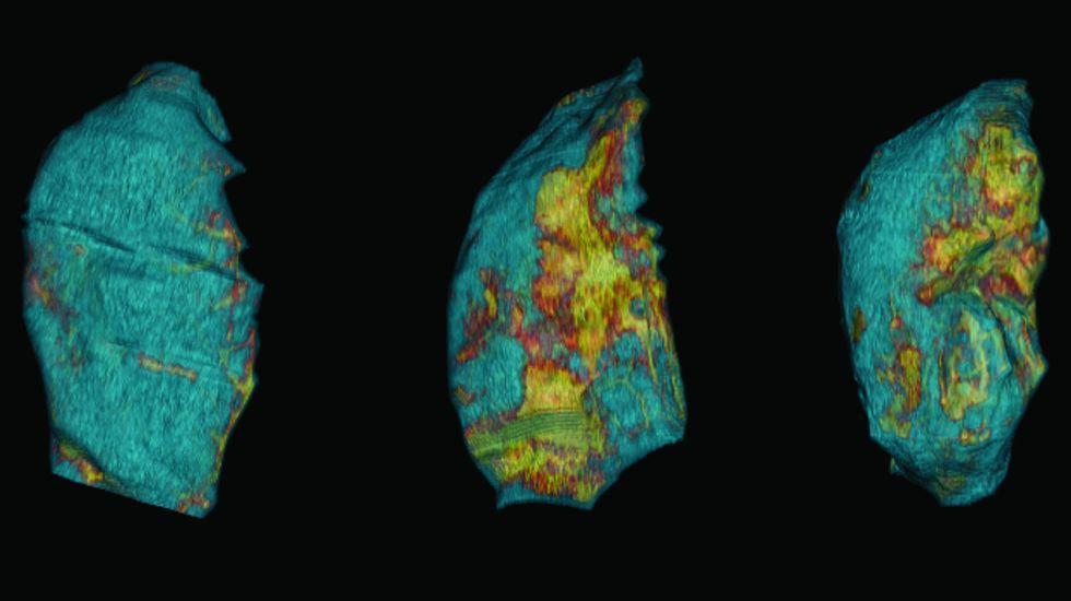 Pulmones de ratón sanos (azules), dañados por la ventilación mecánica (manchas amarillas) y recuperándose de los daños (menos amarillo).Pulmones de ratón sanos (azules), dañados por la ventilación mecánica (manchas amarillas) y recuperándose de los daños (menos amarillo)