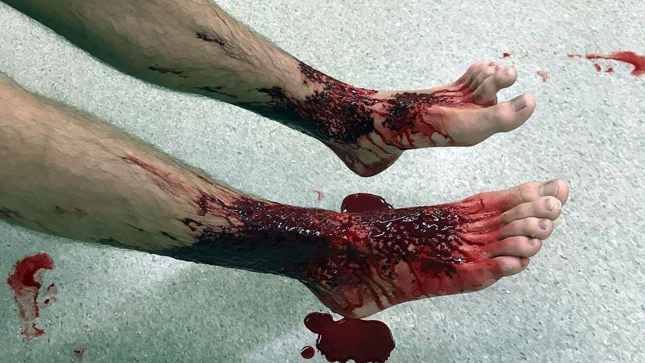 Los piojos de mar que desgarraron la piel de un joven australiano.
