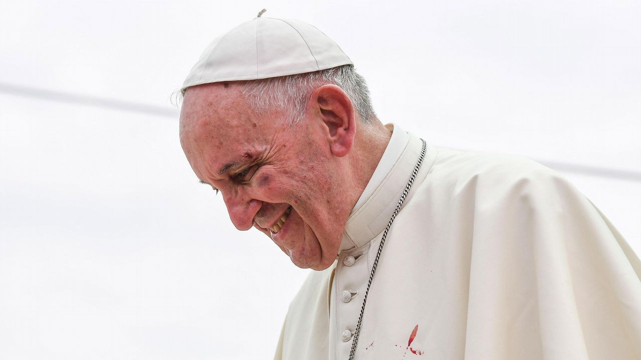El pontífice sufrió un pequeño golpe en la ceja y el pómulo izquierdo al intentar saludar a un niño durante el recorrido en el papamóvil