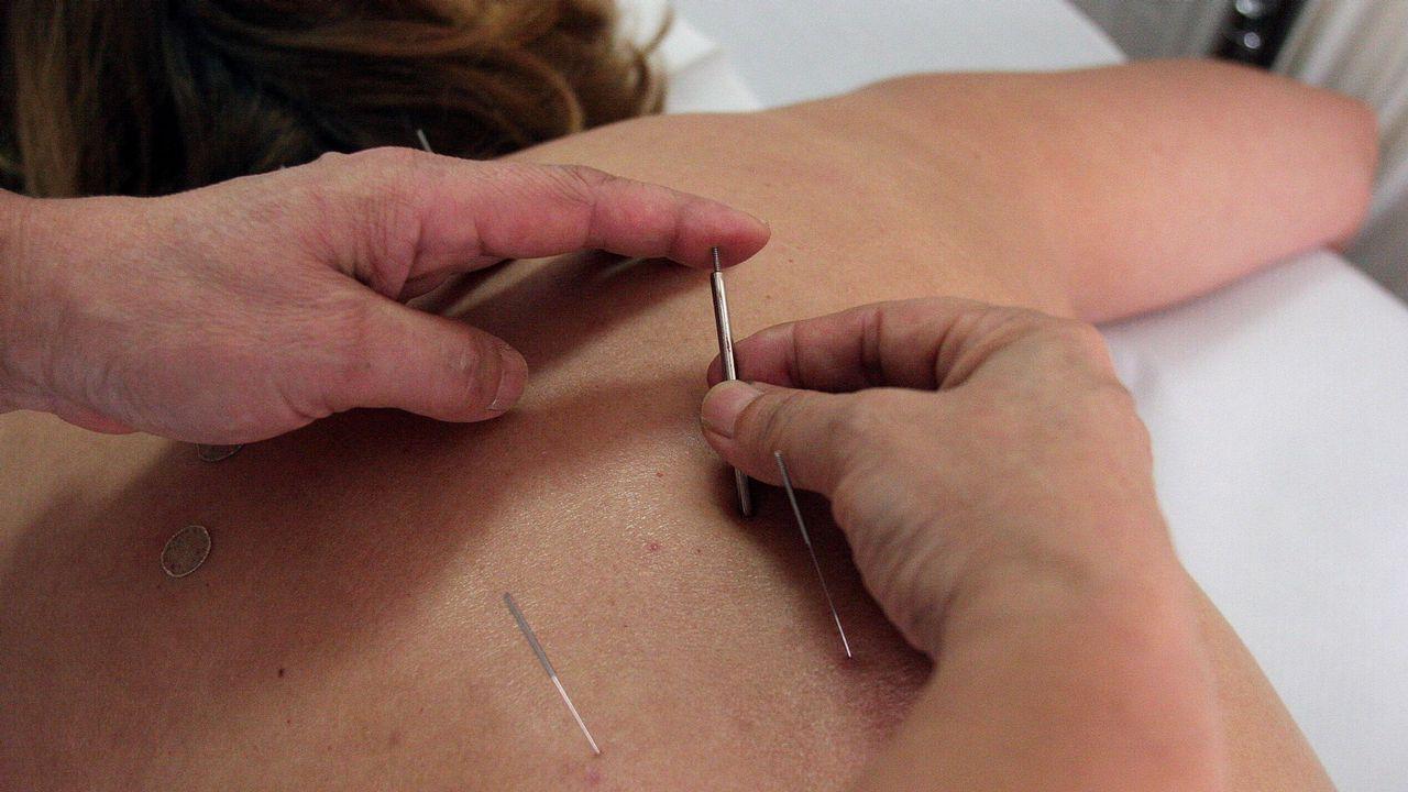 Un 32,8% de la población confía mucho o bastante en la acupuntura, según esta encuesta