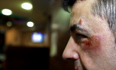 Un hostelero carballés fue agredido por dos encapuchados en la madrugada del viernes.