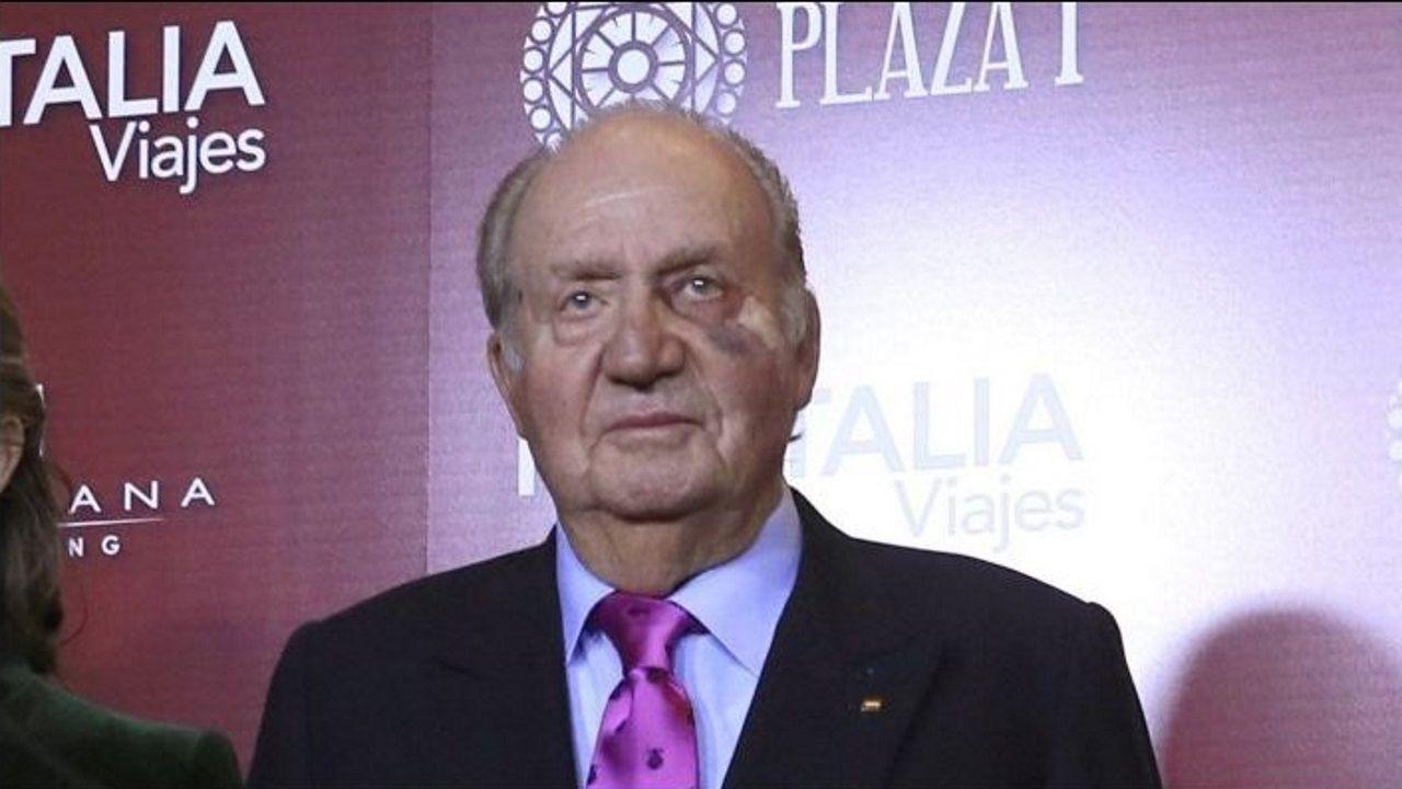 El rey Juan Carlos reaparece con un moratón en un ojo.José Carlos Mella, en su casa familiar en O Foxo, A Estrada.