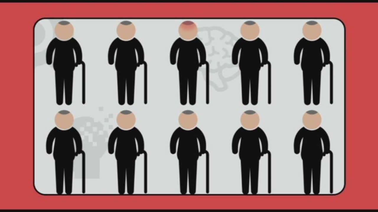 ¿Sabías que cada tres segundos se detecta un caso de demencia en el mundo?